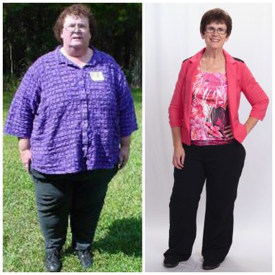 Teresa Parker on left in 2004 at 430 pounds. Today, she has lost more than 250 pounds and she's still planning on losing more.