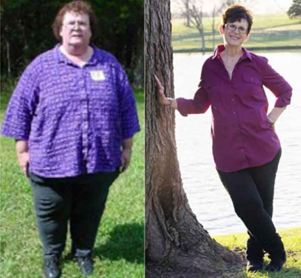 Left, Teresa Parker, 2004, at 430 lbs. Right, Teresa today after losing 260 lbs.